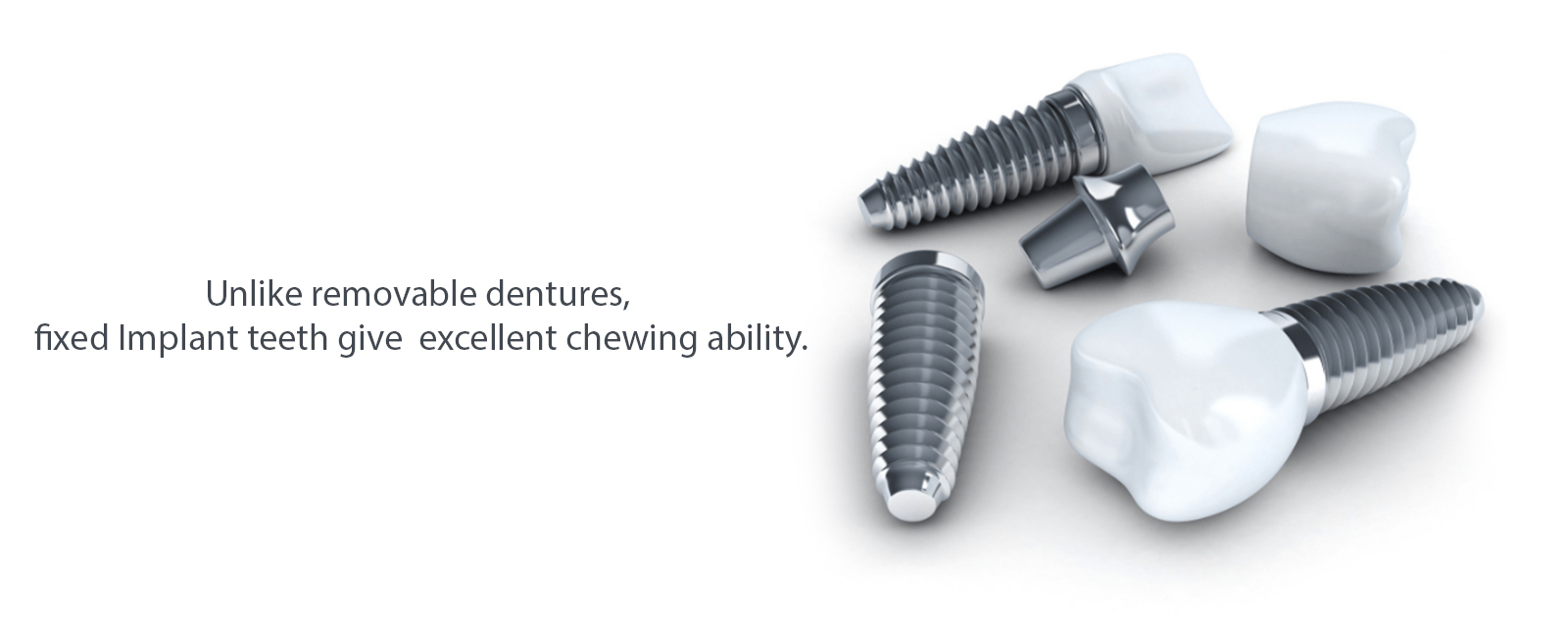 Best Dental Implants Clinic Bengaluru