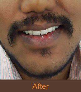 dentist hyderabad
