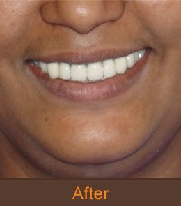 good dental clinic in bangalore