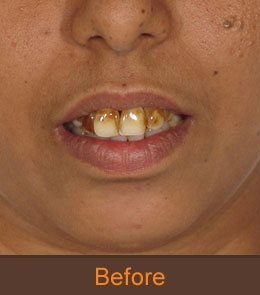 permanent teeth implantation