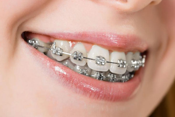 Clips and Braces Treatment