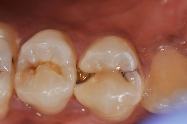 Dental Caries / Decay / Cavities