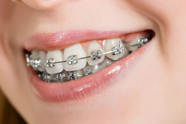 Orthodontic Fixed Braces Removable Brace Functional