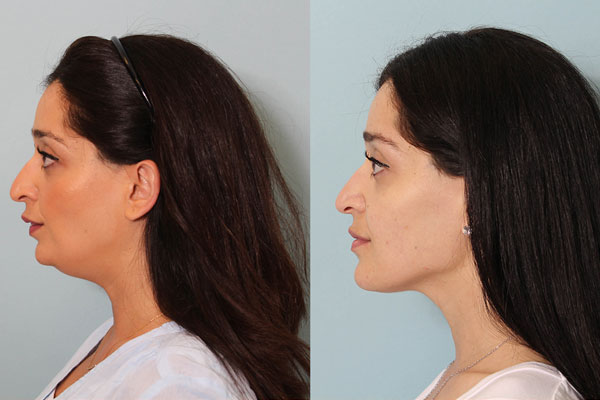 Genioplasty Chin Surgery