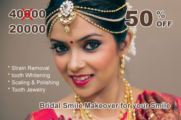 Bridal Smile Makeover for your smile